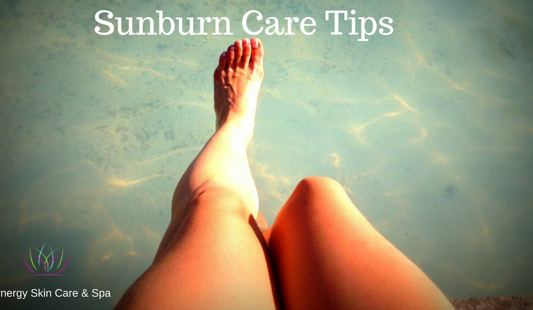 Sunburn Care Tips